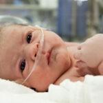 Легочные проблемы у новорожденных